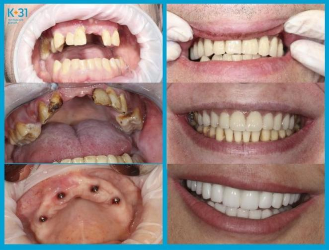 Как избежать конфуза с потерей съемного зубного протеза